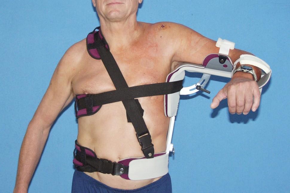 Fixácia ramena po ošetrení rotátorovej manžety – thorakoabdukčná dlaha