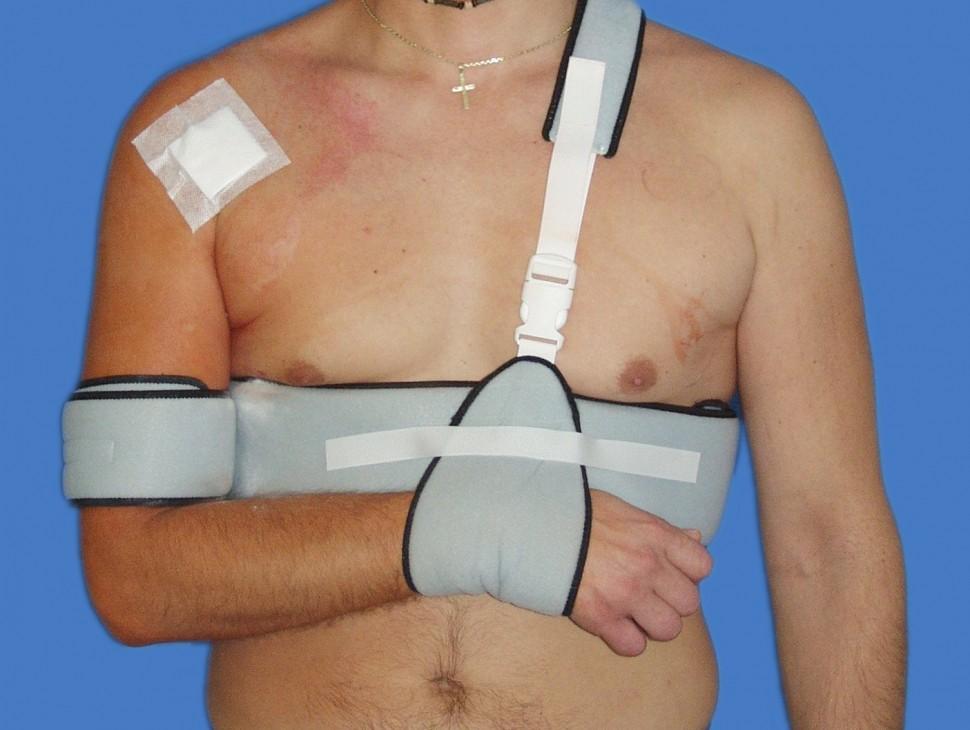 Fixácia ramena po stabilizácii - Desault ortézou