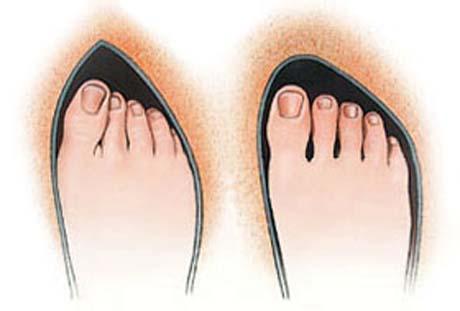 Tesná obuv-haluxy
