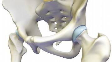 bedrový kĺb