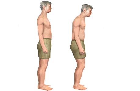 Obr.: Postoj zdravého človeka a človeka s Bechterevovou chorobou