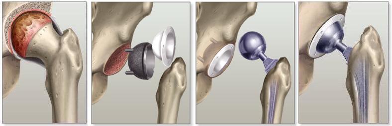 Nahradenie poškodeného kĺbu (zdroj obr.: leehealth.org)
