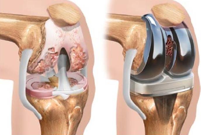 Náhrada kolenného kĺbu (zdroj obr.: researchgate.net)