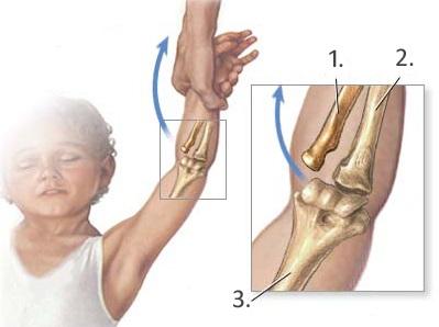 Vychýlenie vretennej kosti zo správnej pozície (1. vretenná kosť, 2. lakťová kosť , 3. ramenná kosť); zdroj obr.: juntadeandalucia.es